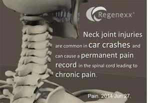 facet joint pain picture 18