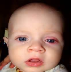 herpes simplex one in infants picture 6