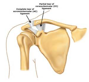compression of the ac joint of the shoulder picture 5