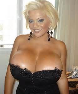extreme breast augmentation picture 10