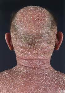 about skin cancer picture 14