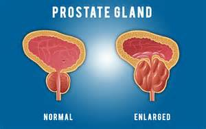 Where is the prostate picture 6