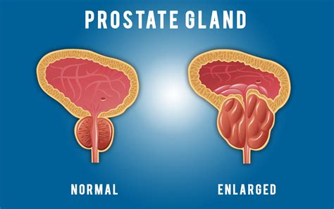 Prostate function picture 7