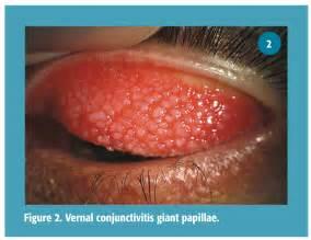 azasite blepharitis picture 5