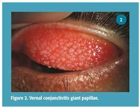 azasite blepharitis dosage picture 5