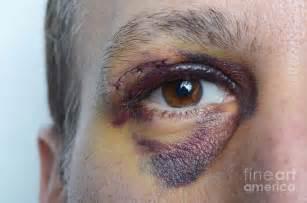 acne s picture 5