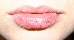 what to do for dry lips picture 18