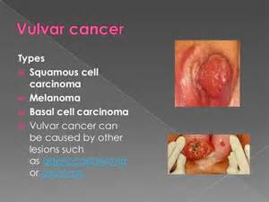 basal cell skin cancer metastasis picture 11