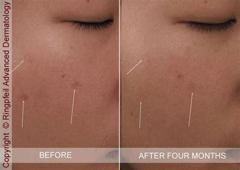 dermatology acne shots picture 9