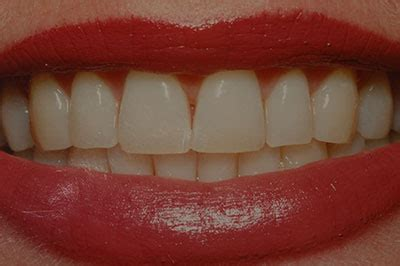 chevy chase teeth whitening picture 9