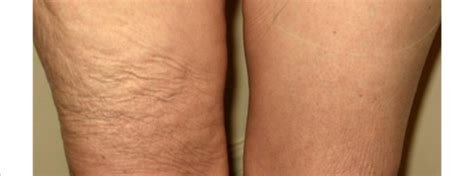 flabby legs after weight loss picture 10