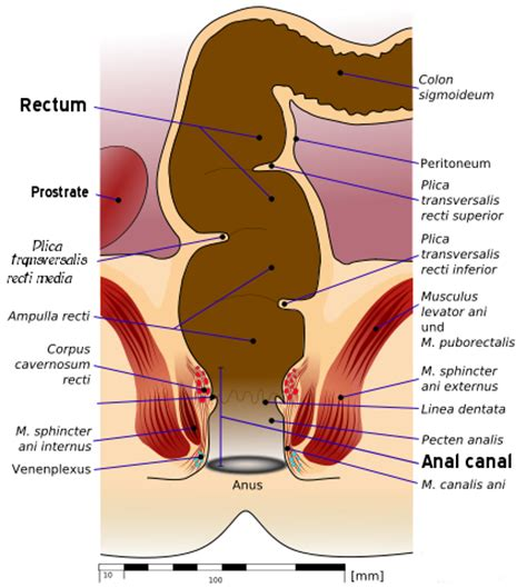 severe hemorrhoid pain picture 10
