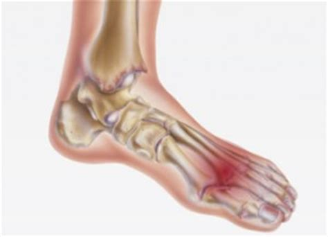capsulitis fifth toe joint symptoms picture 2