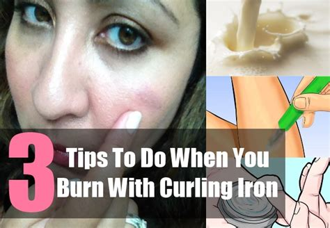 curling iron skin burns picture 9