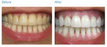 do teeth continue to whiten after treatment is finished picture 5