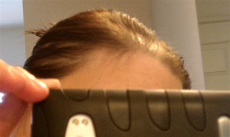aldactone hair loss picture 1