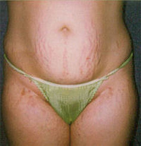 breast stretch marks picture 6