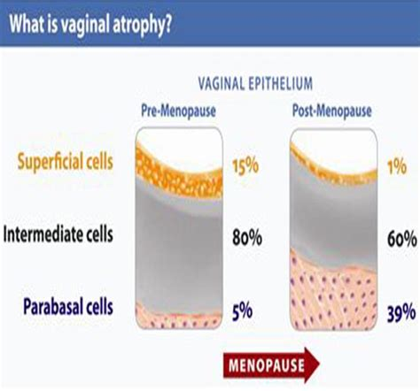 natural products for vagina atrophy picture 1