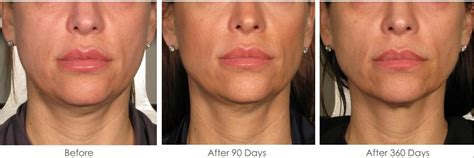 an skin tightening laser new jersey picture 8