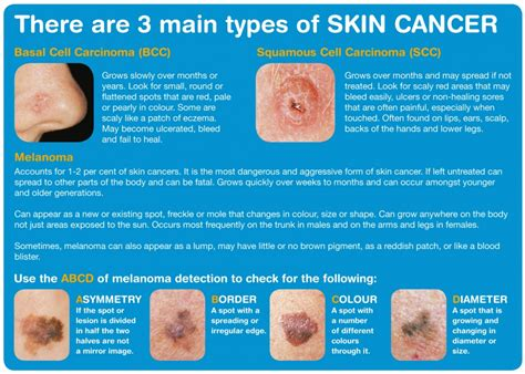 pictures of skin cancer types picture 2