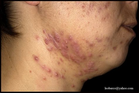 acne after hysterectomy picture 1
