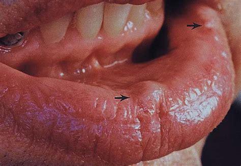 artery in lip picture 5