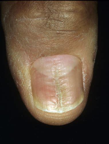 fingernail diformaties picture 7