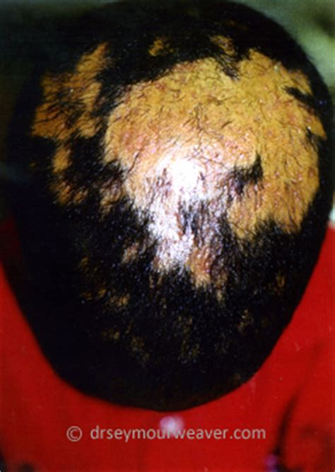 scalp hair loss due to mrsa picture 5