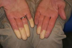 joint pain in hands and feet picture 4