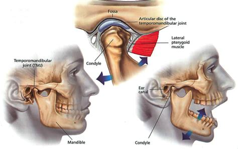 joint pain relief picture 1