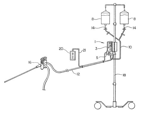 continuous bladder irrigation picture 13
