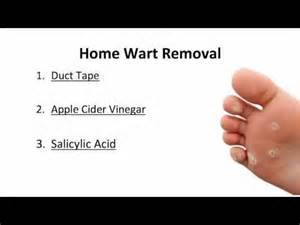 home remedy wart removal picture 9
