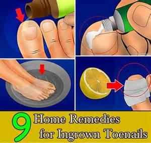 toenail fungus home remedies picture 5