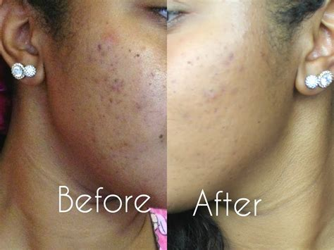 mythic tribe skin care picture 2
