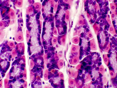 what does intestinal intersial cell produce picture 1