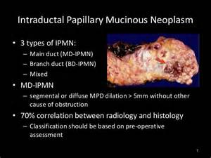 icd9 code papillary thyroid cancer picture 13