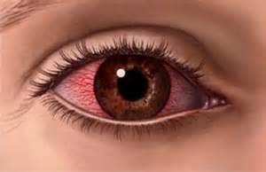 ano ang tawag sa allergy sa malamig picture 10