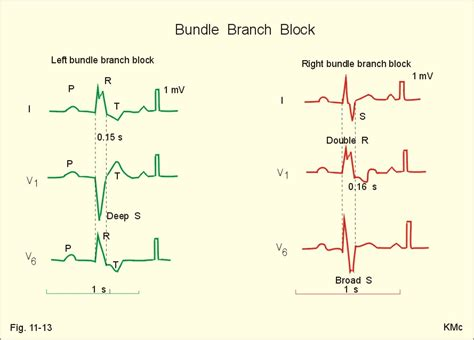 can herbal vitamins give you an abnormal ekg picture 11