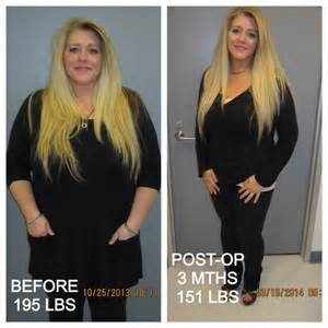 affordable weight loss surgery in houston texas picture 6