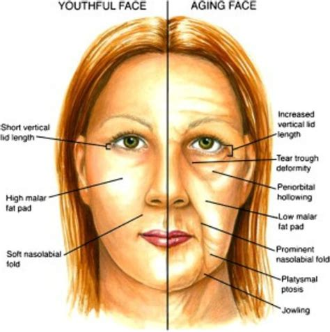 ageing technique picture 6