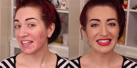 hide acne with cover up picture 5