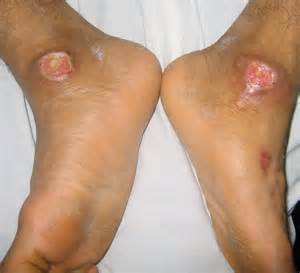 foot problems in diabetics picture 2