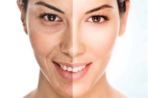 best anti aging creams picture 3