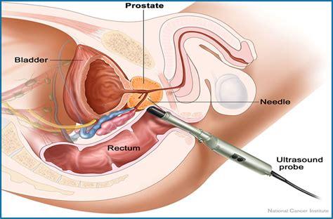 depth of penis plug picture 1