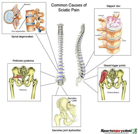 leg pain caused by colon picture 6