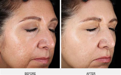 laser resurfacing pictures acne scars picture 5
