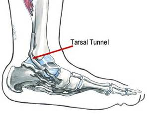 vitamins for tarsal tunnel syndrome picture 17