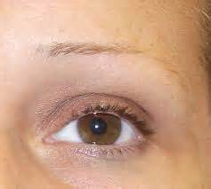 hair loss eyebrows picture 7