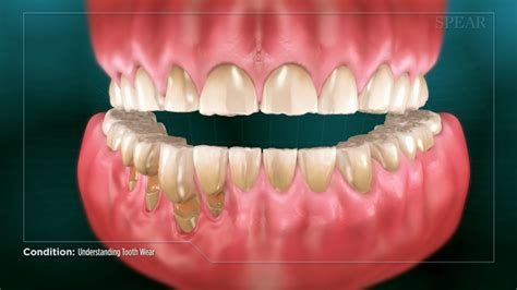 fort worth tooth whitening picture 3