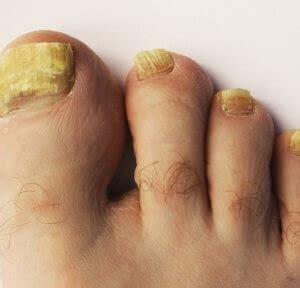 can people with toenail fungus get pedicures picture 9